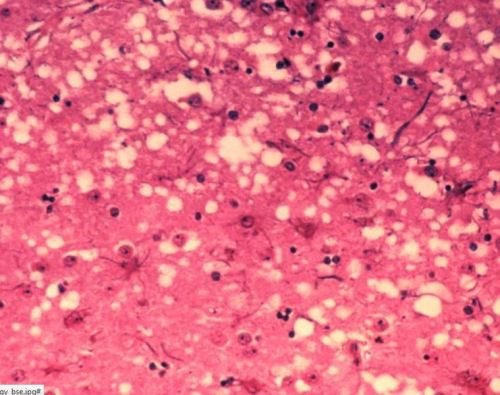 spongy TSE-infected brain tissue